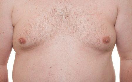 männliche Brustvergrößerung