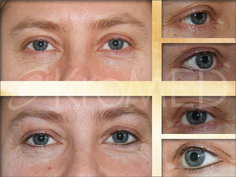 Augen Permanent Make Up Kromed Medizinisch Und Asthetische