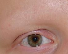 Augenbrauen Alopecia totalis | Permanent Make-up Hamburg | KroMED