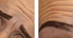 KroMED | Permanent Make-up Hamburg | Augenbrauen Mimik