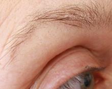Permanent Make-up Hamburg | fehlende Augenbrauenform | KroMED