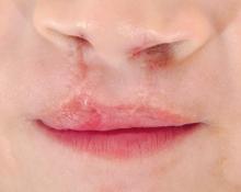 KroMED Hamburg | Modellierung der Lippenform nach klinisch abgeschlossener LKGS - Behandlung
