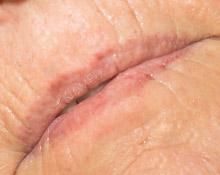 KroMED Permanent Make-up| Lippen - Lippenfältchen