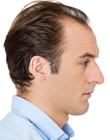 KroMED Hamburg | Geheimratsecken permanent kaschieren- schraffierte Haarverdichtung wenn die Haare schütter werden